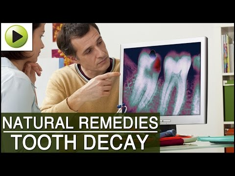 Tooth Decay - Natural Ayurvedic Home Remedies