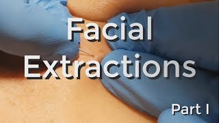 Facial Extractions - Part I