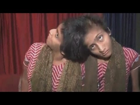 India's famous conjoined twins, Saba and Farah, win court battle for financial aid