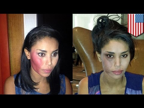 Attacked! Donald Sterling's girlfriend V.Stiviano punched in New York taxi