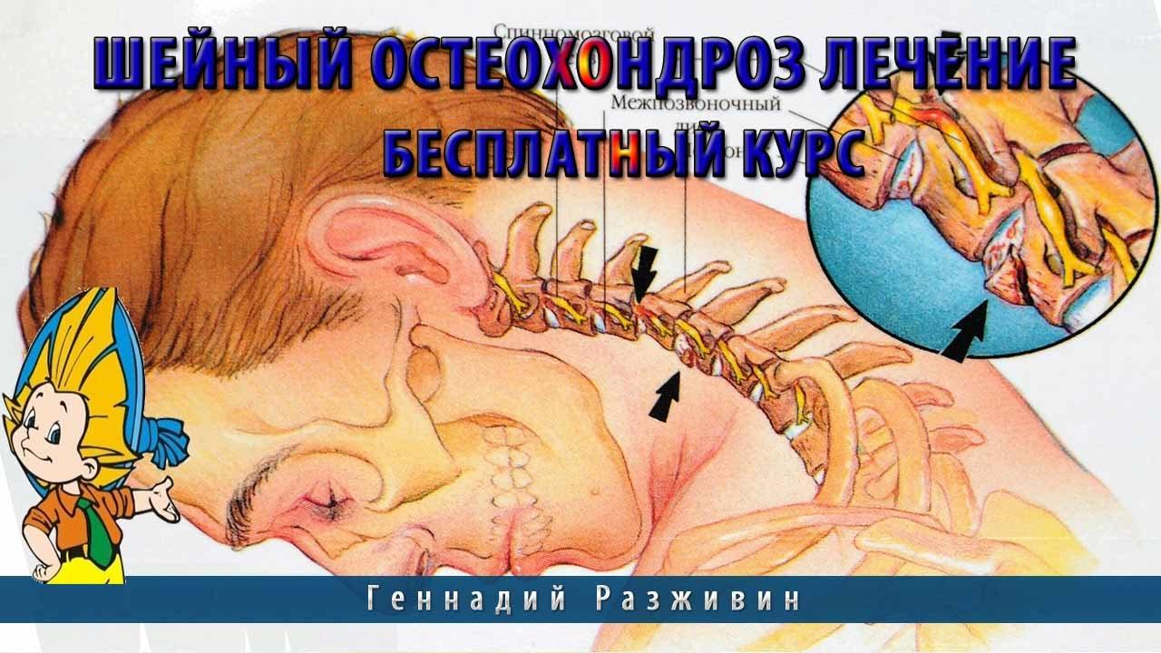 Лечение остеохондроза шея в домашних условиях 54
