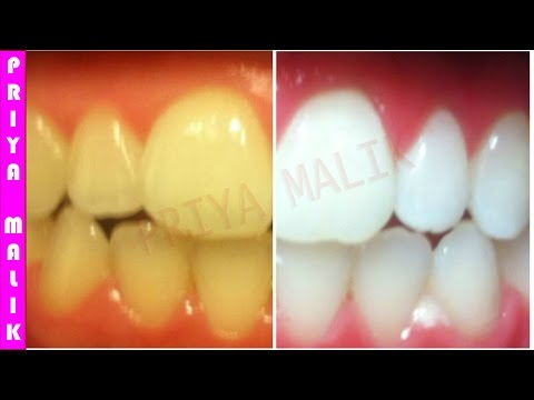 Teeth Whitening At Home In 3 Minutes    How To Whiten Your Yellow Teeth Naturally    100% Effective