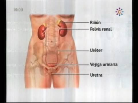 Infección de Orina Médicos Mira la Vida 050210.mpg