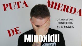 9º Meses con MINOXIDIL. PUTA MIERDA DE MINOXIDIL