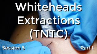 Whiteheads Extraction (TNTC) - Session 5 Part I