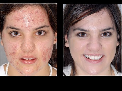 Natural Acne Remedies - simple tips and rid your acne fast [99%working]