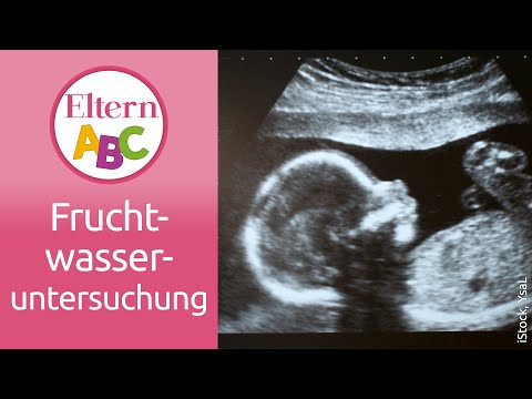 Fruchtwasseruntersuchung: Was wird dabei gemacht? | Schwangerschaft & Geburt | Eltern ABC | ELTERN