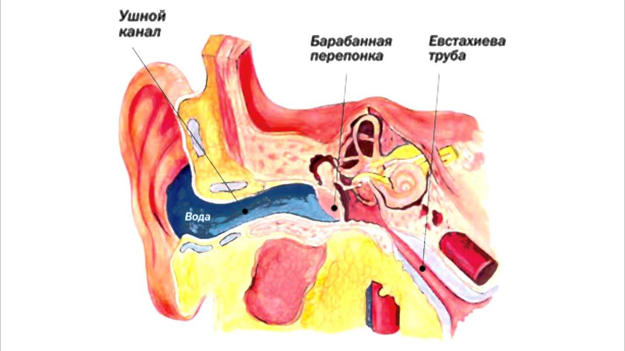 Серная пробка в ухе: симптомы 36