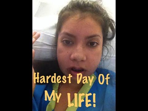 Double Jaw Surgery   Hardest Day of my LIFE   Orthognathic   Underbite Journey Part 2