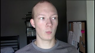 19 Year Old Balding - Dealing With Criticism