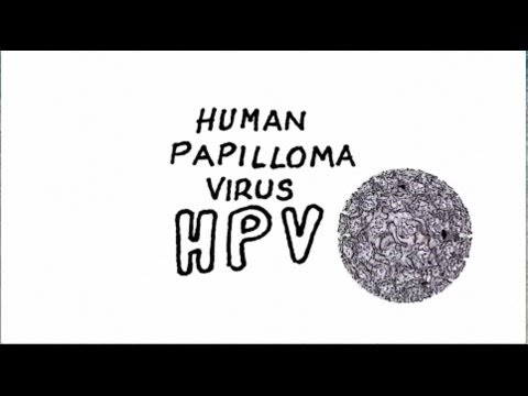 HPV and Throat Cancers