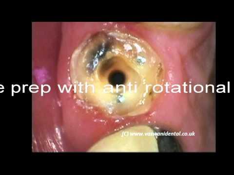 Fractured lateral incisor restored by Vaswani Dental at Southgate, London N14 near N21,N20,EN2,EN4,
