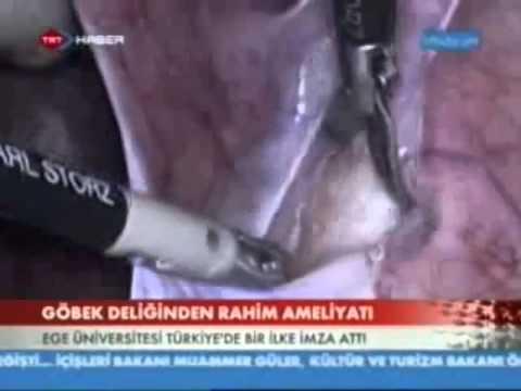 TRT - Türkiyede ilk defa tek delikten robotik cerrahi ile rahim alınması 01.01.2013
