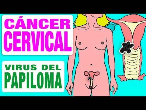 Cáncer de Cuello Uterino y el Virus del Papiloma Humano