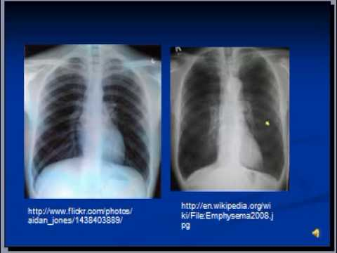 Chest x-ray interpretation --COPD and Emphysema