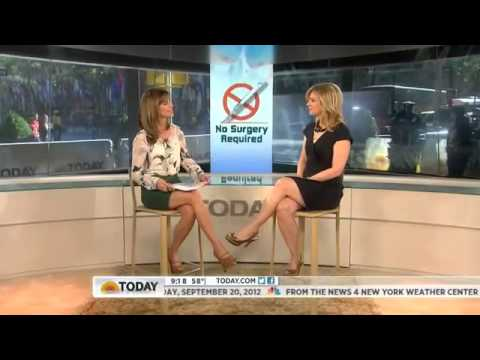 Thermage Sydney Specialists - Watch Thermage on Today Show