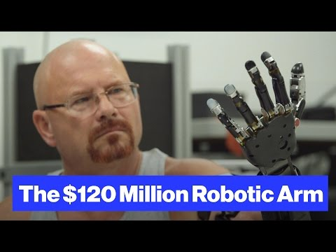 The Robot-Arm Prosthetic Controlled by Thought