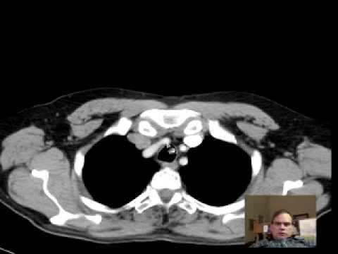 Chest ct anatomy