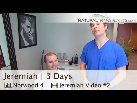 3 Days Post-Procedure - Natural Transplants, Hair Transplant Miami Florida (Jeremiah)