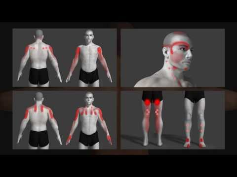 trigger point explained with animation