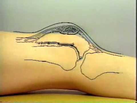 orthopedic physical examination tests pdf