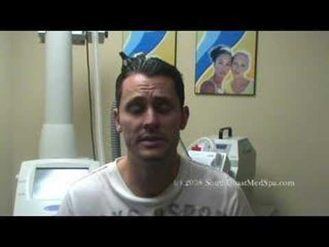 Laser Acne Scar Removal Treatment Testimonial