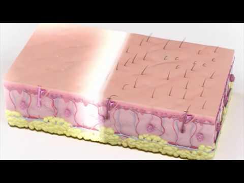 Применение лазеров в косметологии. CO2, диодные, неодимовые лазеры, лазерная эпиляция