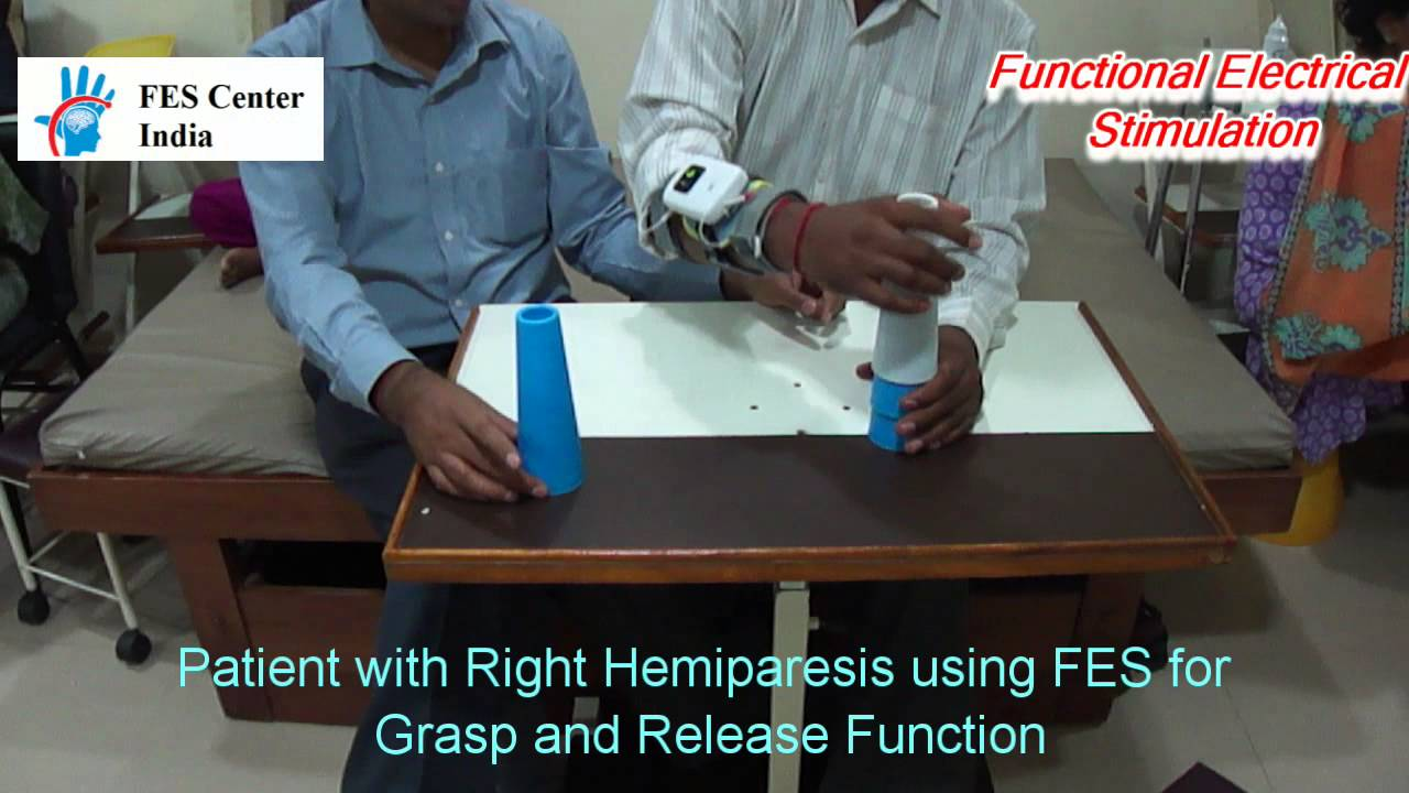 Fes Functional Elecrical Stimulation For Hemiplegic Hand