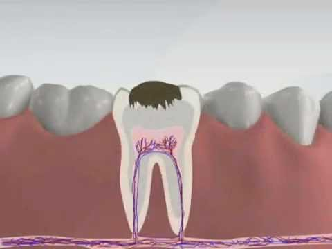 3d Medical Animation - Root Canal