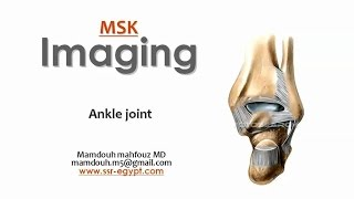 Imaging of the Ankle joint -DRE 5 - Dr Mamdouh Mahfouz