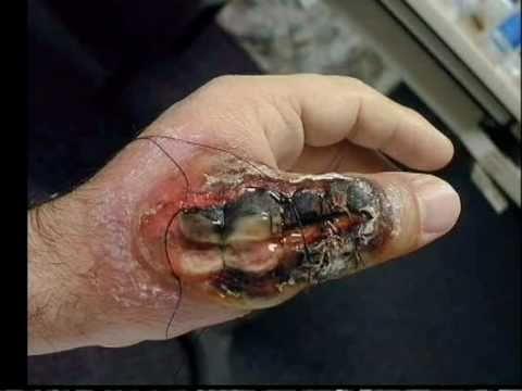 Deadly Spider Bites!