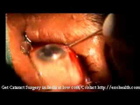 Cataract Eye Surgery in India