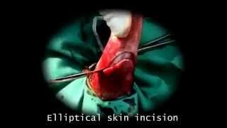 tail docking in dog-VETEOLOGY .flv