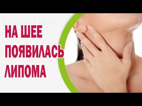 0 - Що робити, якщо опухли лімфовузли на шиї праворуч або ліворуч