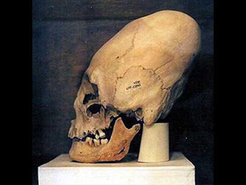 Confirmation that Elongated / Conehead skulls from Peru and elsewhere are extraterrestrial fossils!