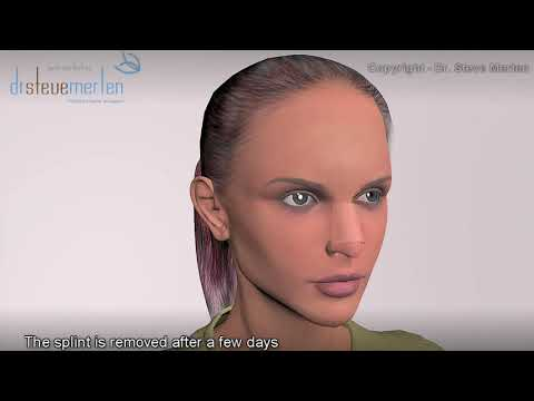 Rhinoplasty Nose Surgery Animation - Dr. Steve Merten in Sydney, Australia