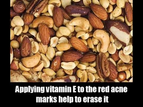 How To Reduce Acne Redness