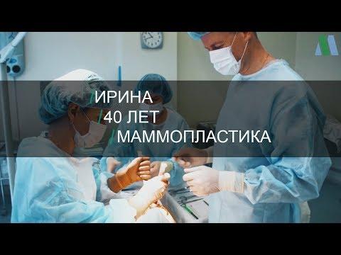 Маммопластика. История Ирины