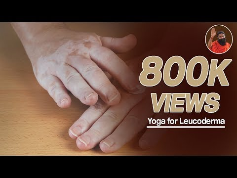 Swami Ramdev-yoga For Leucoderma(सफेद  दाग के लिये ) Part 1 video