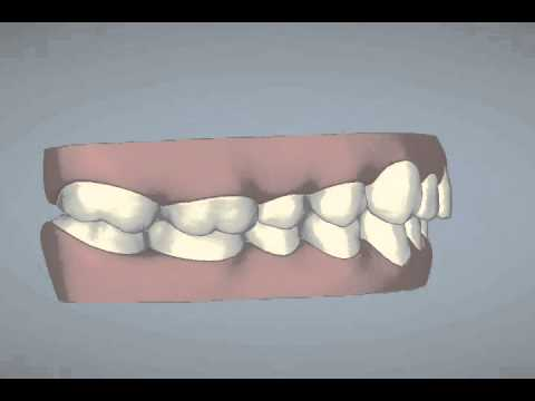 Invisalign ClinCheck Animation - Sheryl B