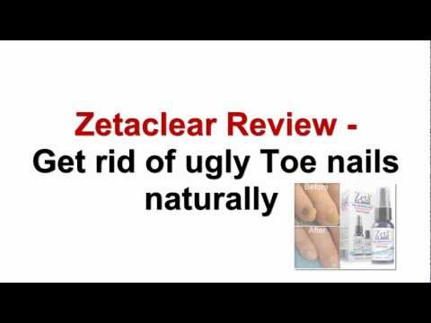 Zetaclear Review - Get Rid of Ugly Toe Nails Naturally