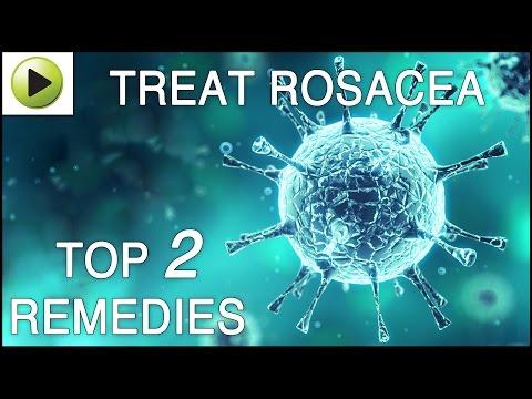 Skin Care - Rosacea - Natural Ayurvedic Home Remedies