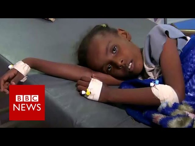 UN: Yemen faces 'significant' cholera outbreak - BBC News