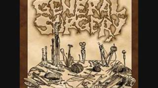 Watch General Surgery If These Walls Could Talk video