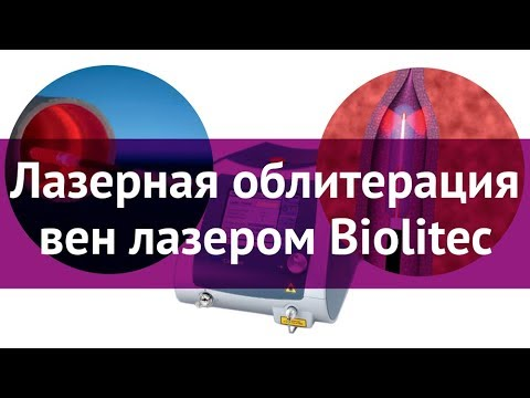 Лазерная облитерация вен лазером Biolitec
