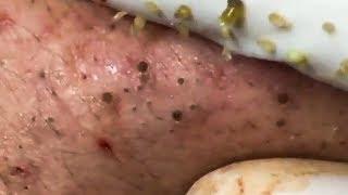 Ghiền nặn mụn | nặn mụn đầu đen nổi khắp mặt | Blackheads acne
