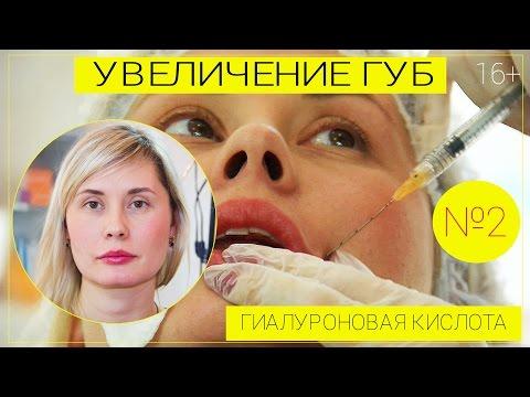 Увеличение губ.Гиалуроновая кислота