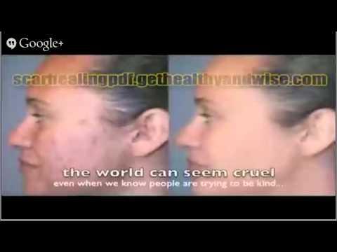 acne scar removal cream reviews FREE eBOOK on acne scar removal cream reviews