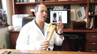 LIMB LENGTHENING with DR. ROZBRUCH - Pre-Op Education (INTERNAL LENGTHENING ROD)