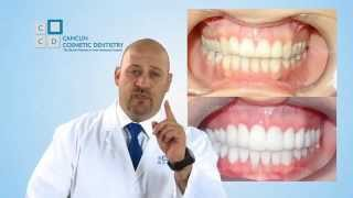 Dental Crowns Procedure In Mexico Explained